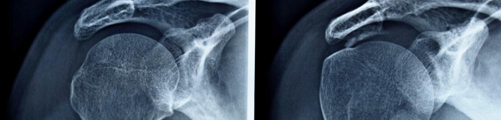 Schultersteife (frozen shoulder) - Ortho-Klinik Rhein-Main